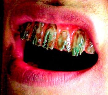 Leichen Veneer Zähne Pro