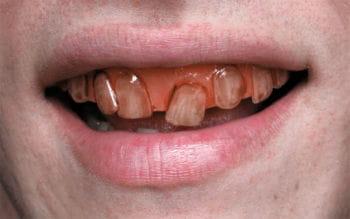 Waldschrat Veneer Zähne Pro