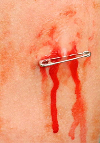 Bio SFX Safety Pin Wound Appliance