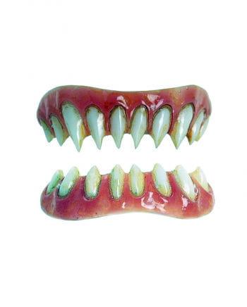 Dental FX Veneers Gaul-Zähne