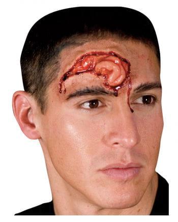 Stroke wound