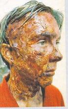 Gelafix Skin Colours
