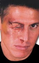 Swollen Eye Wound