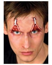 Eyelid Tightening Latex Wound