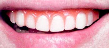 Movie Star Veneer Teeth Pro