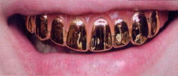 Gold Veneer Zähne Pro