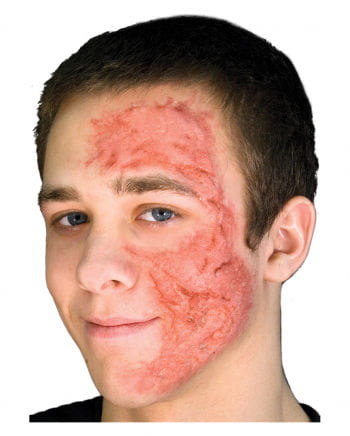 Burn Scar / Burns Gel