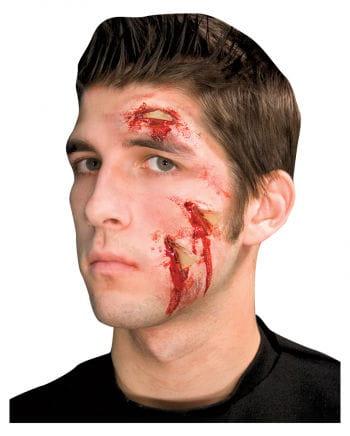 Broken glass wound 3 pieces