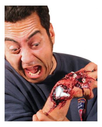 Offene Knochenbruch Wunde