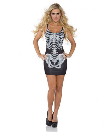Skelett Minikleid