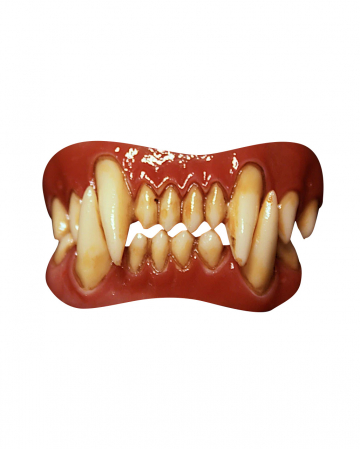 Dental FX Veneers Werewolf Teeth