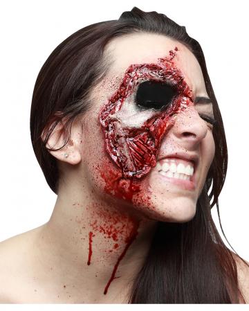 Fernsicht latex wound